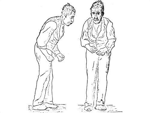 Pistas visuais no congelamento da marcha na doença de Parkinson: um estudo aberto